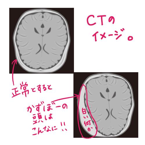 頭部CT画像のイメージ